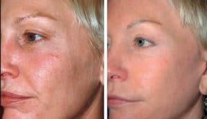 Lifting facial in San diego before and after