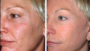 Kiwi Spa Organic facial innovation