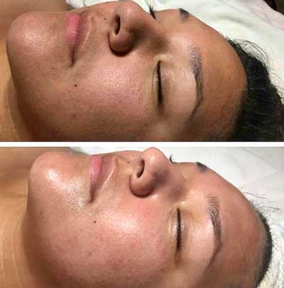 glow of skin before and after oxygen facial