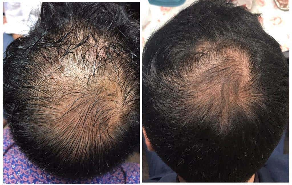 hair restoration san diego