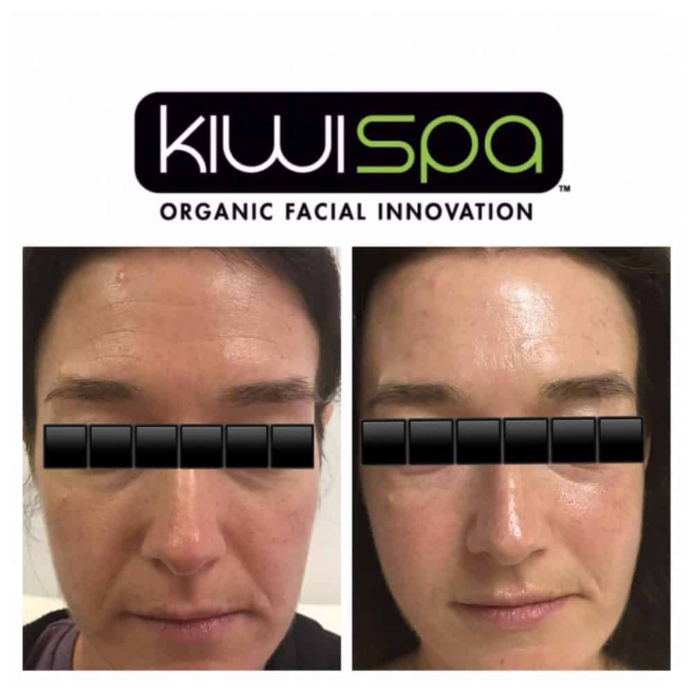 Kiwi Spa anti aging facial treatment