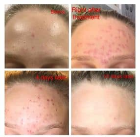 Kiwi Spa Acne Treatment San Diego